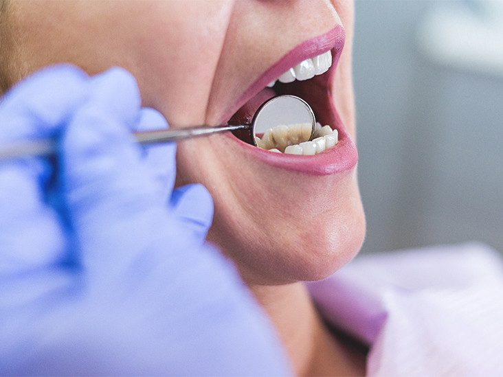 Because the composition of enamel is 96 percent mineral, it is the hardest substance in the body.
