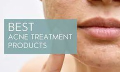 Best acne treatment for women