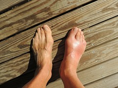 Asian Gout Disease Treatment Medication Discovery Is Mostly Concentrated On Four Primary Areas, Including Rheumatoid Arthritis And Others