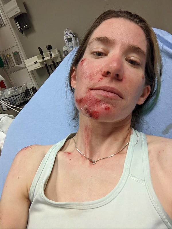 Crash 2: Stitches