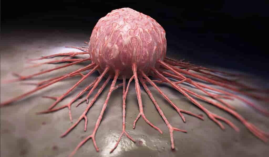 certaines-cellules-contribuent-à-la-rechute-du-cancer