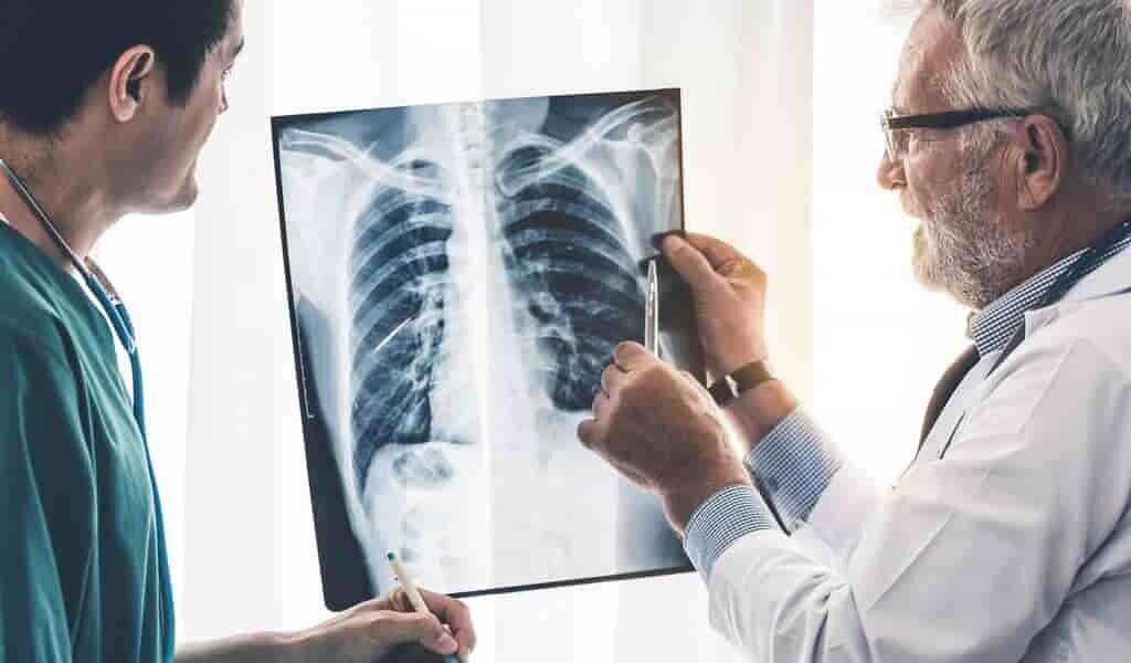 des-images-3D-montrent-le-covid-19-infecter-des-cellules-respiratoires
