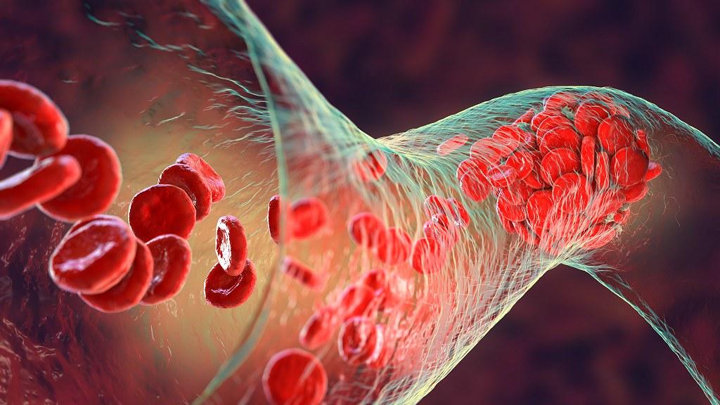 A medical image depicting pulmonary hypertension.