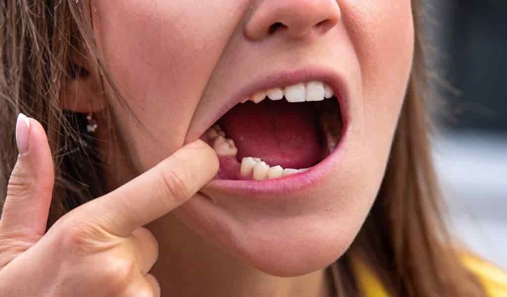la-perte-des-dents-associée-à-des-troubles-cognitifs-et-la-démence