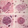 Plasmodium vivax, falciparum, ovlae and inui