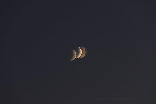 """Moons"" -  Cogan's corneal dystrophy (naked left eye, without lenses)"