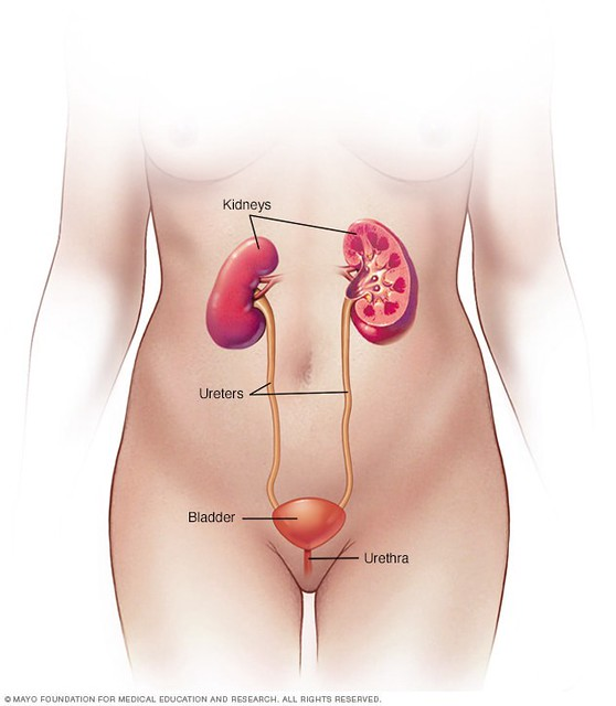 Urinary tract infection, or UTI