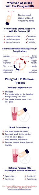 What Can Go Wrong With The Paragard IUD (Infographic)