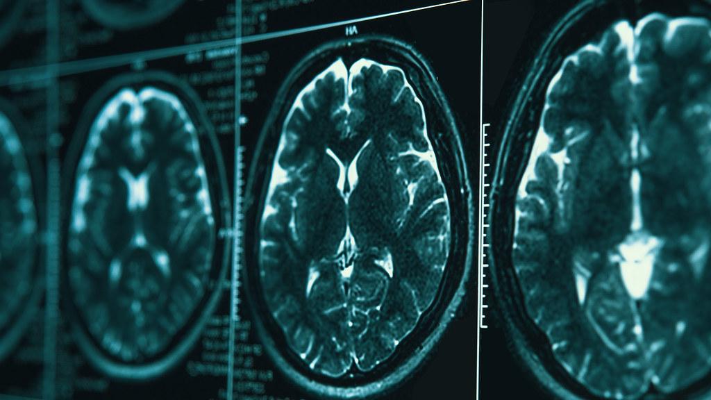 MRI images.