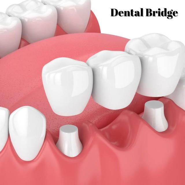 Dental Bridge Turkey - Antalya Dental Clinic