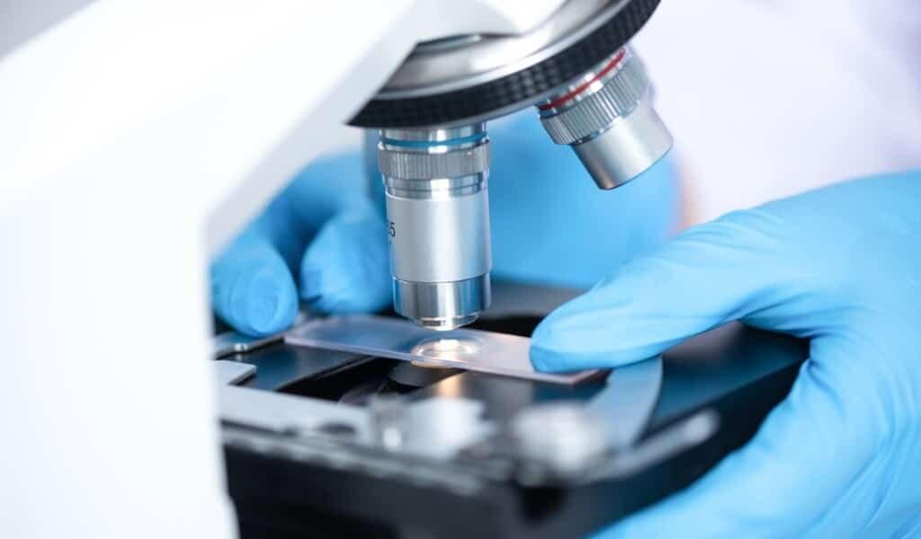 Des lames de microscope intelligentes pour détecter le cancer