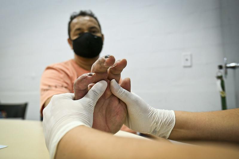 CER de Taguatinga oferece terapia ocupacional pós trauma