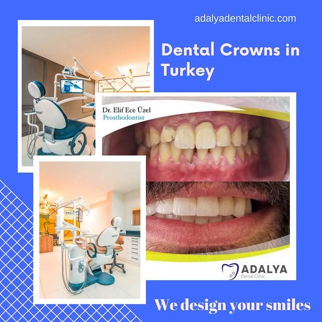 Dental Crowns Turkey - Antalya Dental Clinic