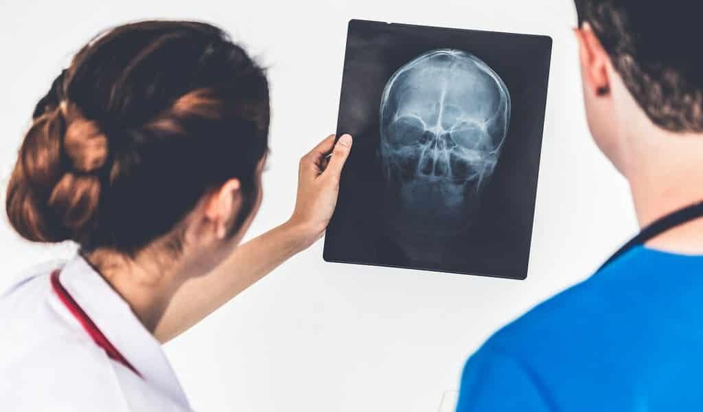 Des bulles dans le sang ouvrent le cerveau pour traiter le cancer