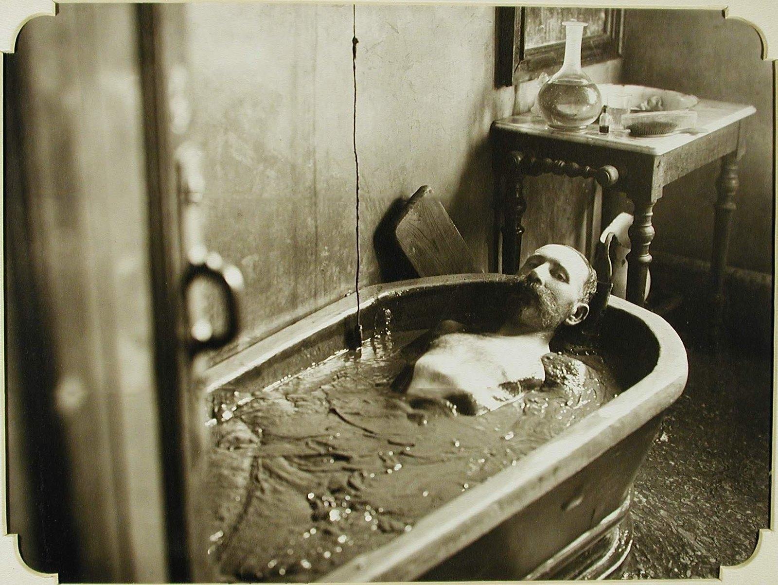 22. Пациент во время принятия грязевой ванны в грязелечебнице на Куяльницком лимане