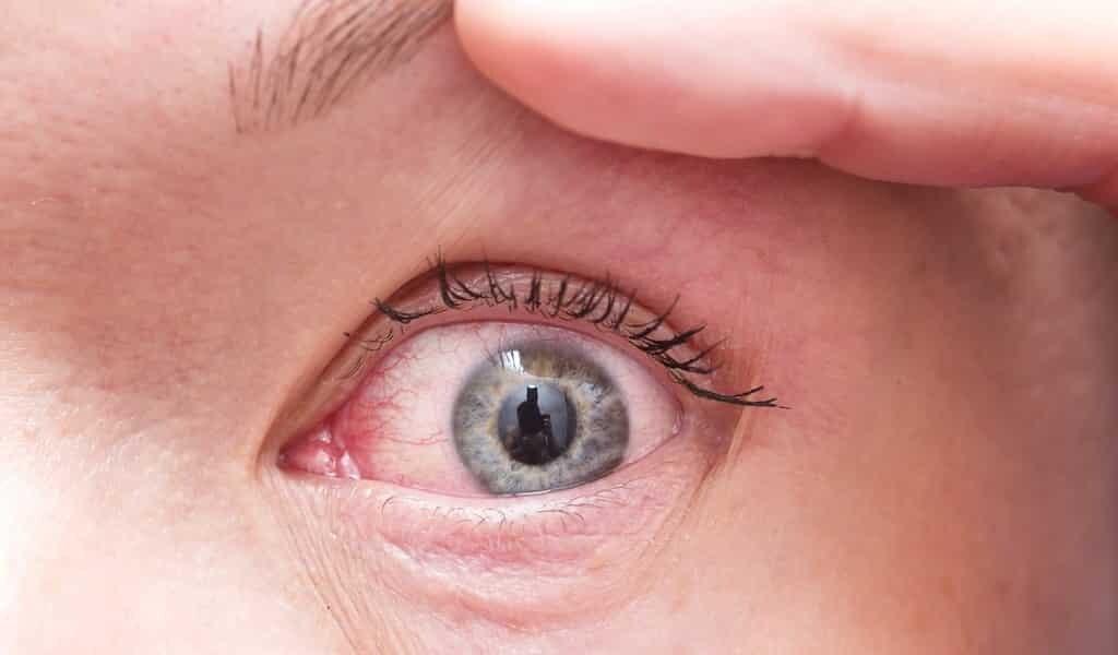 Une nouvelle protéine pour le traitement du glaucome