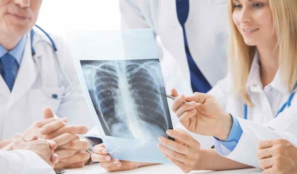 Une molécule montre et traite les cellules cancéreuses des poumons