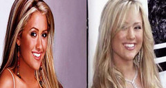 The Real Angel Faith Appears Right After And Prior To Owning Plastic Surgery