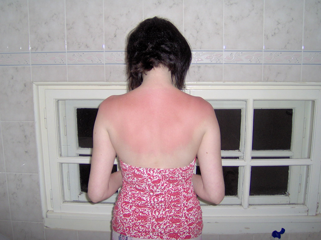 Lianne's Sunburn!! | Ouch, it wasn't even THAT sunny really,… | Flickr