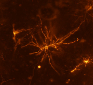 Mouse neuron | by National Institutes of Health (NIH)