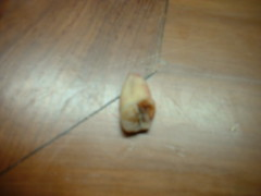 molar3