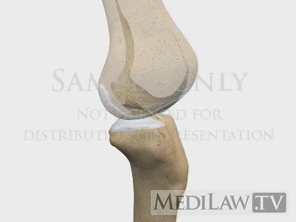 Knee Anterior Cruciate Ligament Tear Rupture Femoral Inter