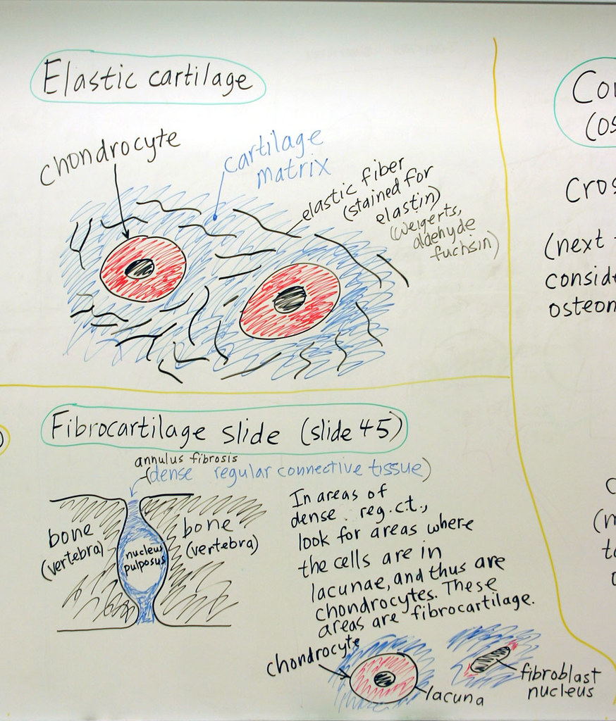 Cartilage And Bone Elastic Cartilage A Hand Drawn Sketch Flickr