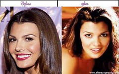 Real Life Pictures Of Ali Landry After And Before Plastic Surgery