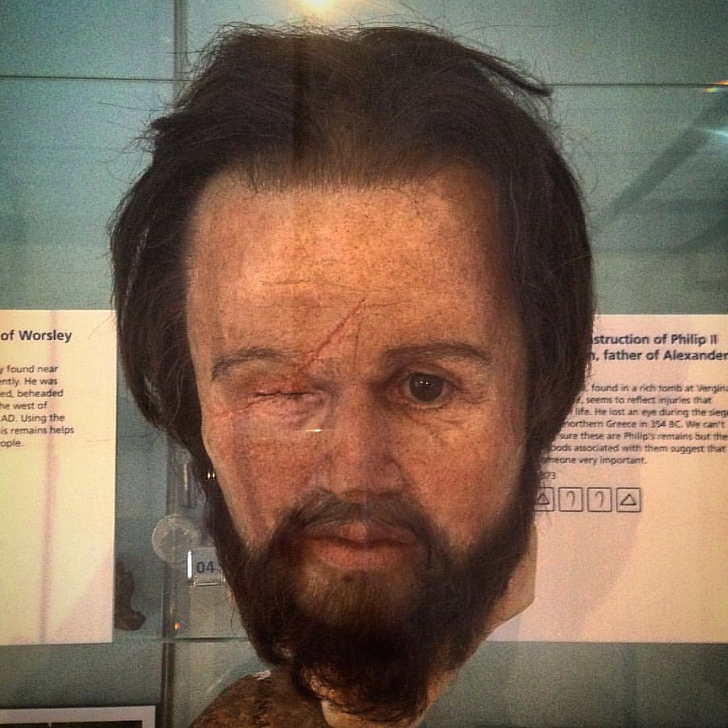 Facial reconstruction of Philip II of Macedon, father of Alexander the Great Damage to the skull, found in a rich tomb at Vergina in northern Greece, seems to reflect the injuries that Philip suffered in his life. He lost an eye during the siege of Metho