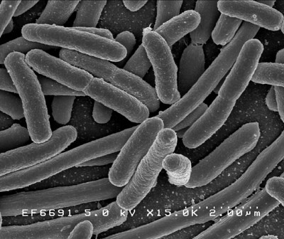 Scanning electron microscope image of some E. coli bacteria. Each cell is about 2 μm long.