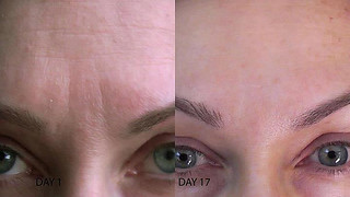 Results | by Team Nerium