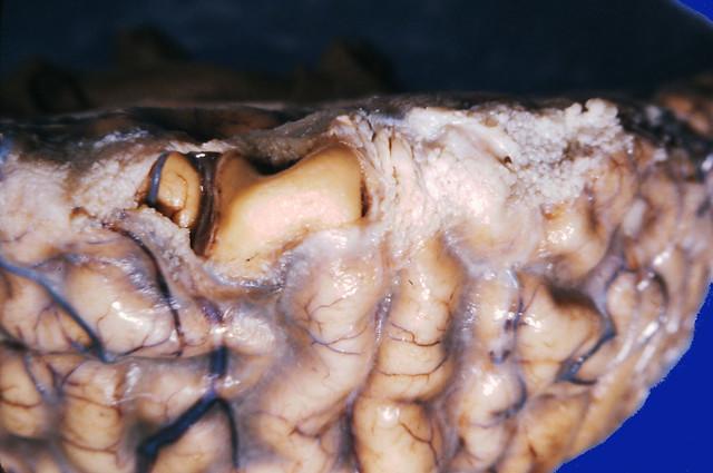 Pneumococcal meningitis