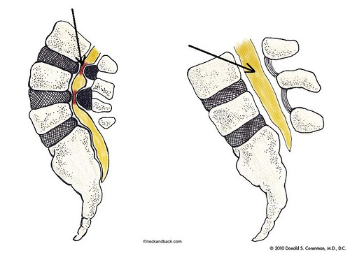 Illustration of Spinal Stenosis | Central Stenosis of the Spine | Colorado Spine Doctor | by neckandback
