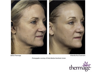 Thermage neck tightening before and after | Tighten any loos… | Flickr
