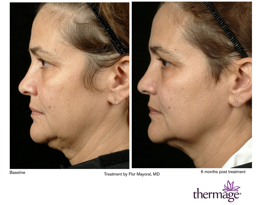 Appearance of a neck-lift, courtesy of Thermage laser tigh… | Flickr