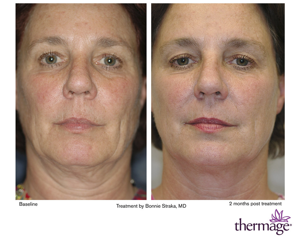 Tighten loose skin with Thermage CPT! | Lower face and neck … | Flickr