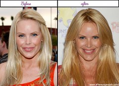 Look At After Before Plastic Surgery Pictures Of Gena Lee Nolin Was She Greater Before?