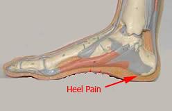 heel pain | by happyfeet34