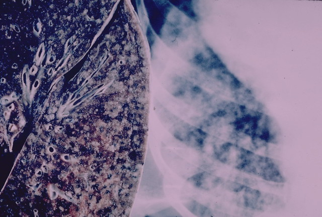Lung - Miliary tuberculosis