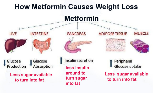 Weight Loss With Metformin Endocrinologist And Weight