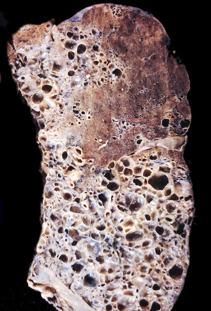 Honeycomb lung