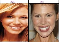 Look At After Before Plastic Surgery Pictures Of Nikki Cox Was She Greater Before?