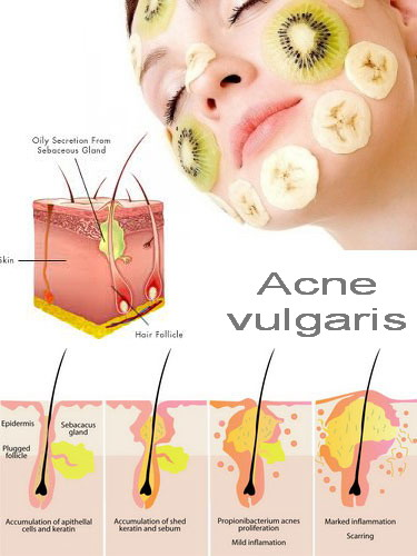Acne Vulgaris Acne Can Develop Due To Various Causes Such Flickr