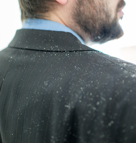 Handle Dandruff Like a Pro with Dr. Joel Schlessinger's Advice | by Dr. Joel Schlessinger