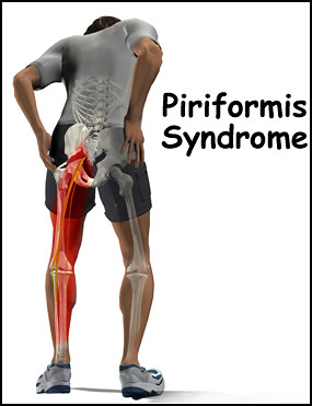 Piriformis syndrome | by OpenHearted.me