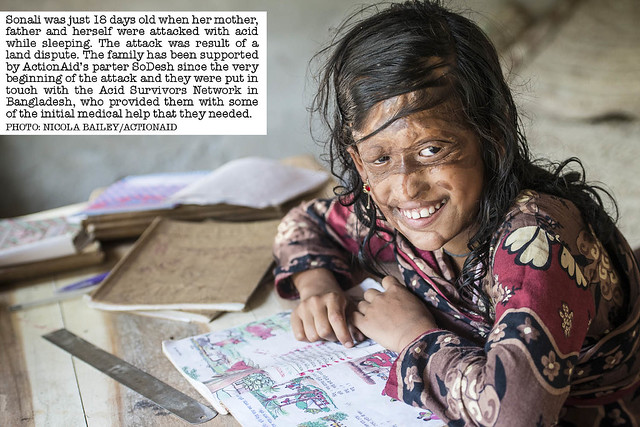 Sonali, acid attack survivor.