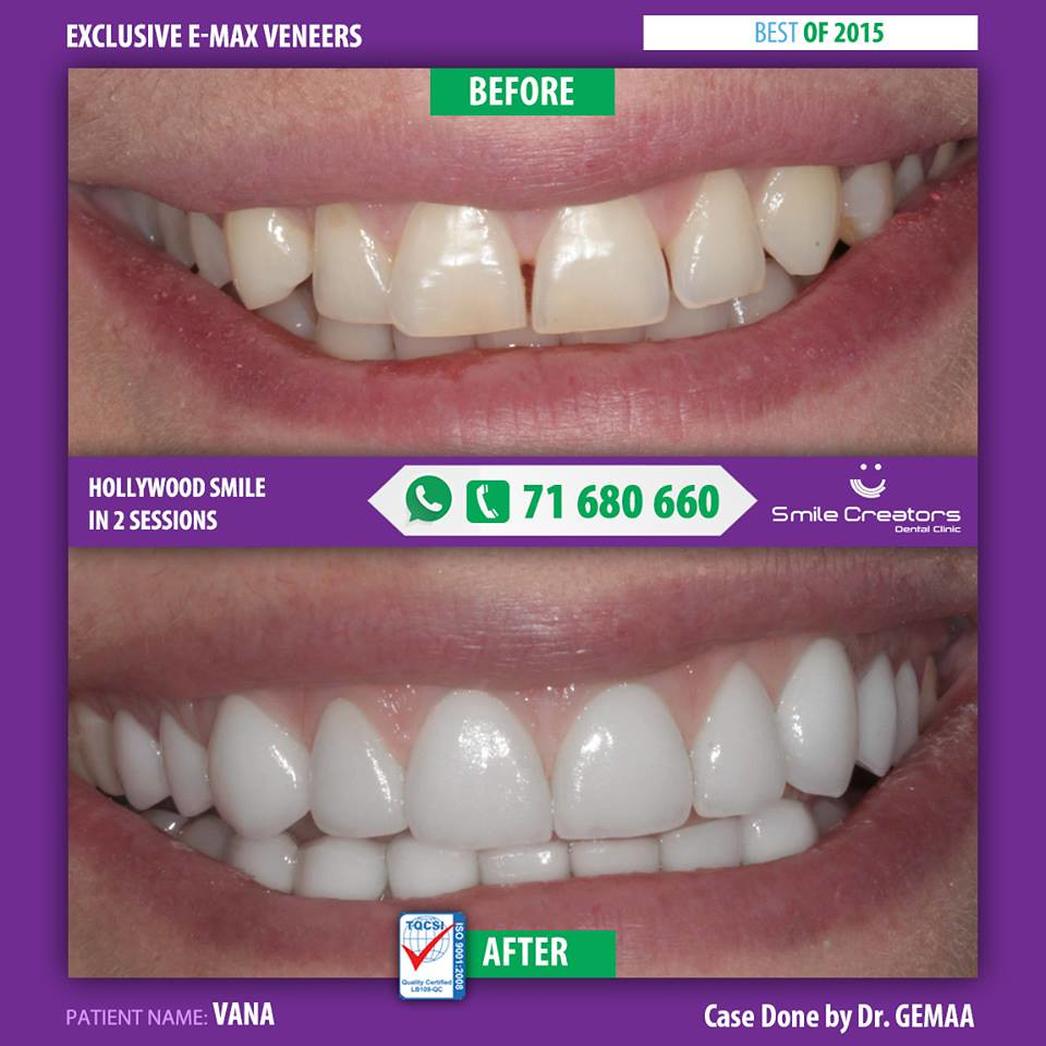 hollywood-smile-laser-whitening-emax-veneers | Vana got a wh