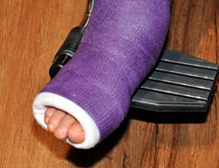 This is NOT the foot of today's speaker. It's our Club Secretary Jan Nelson recovering from a broken bone in her lower leg.