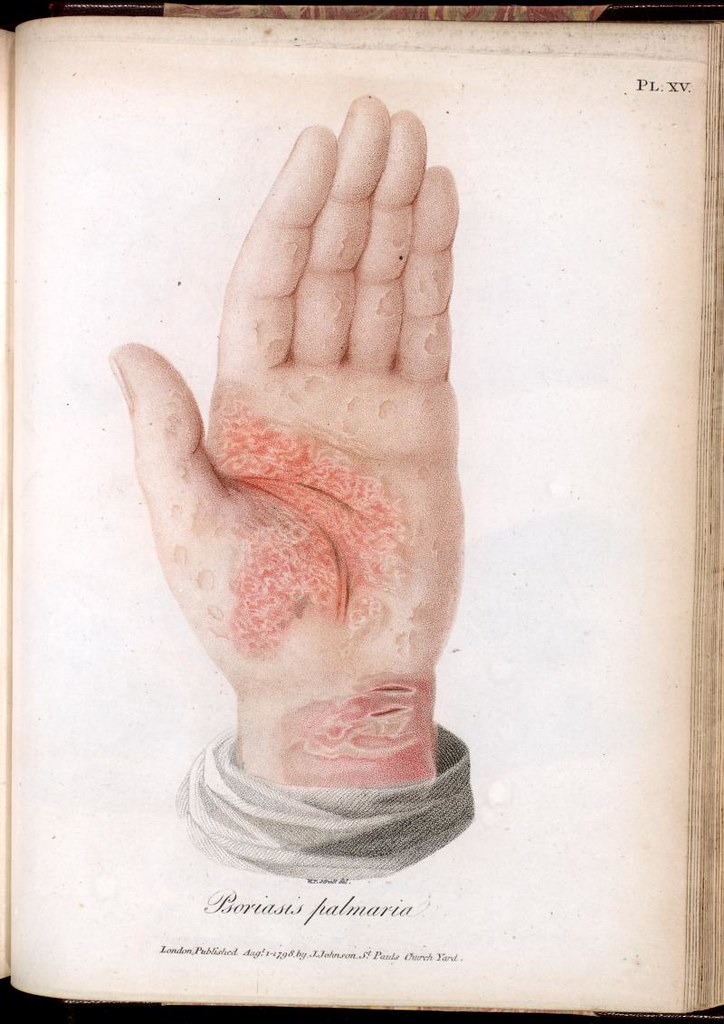 Scaly Lesions On The Palm Of The Hand