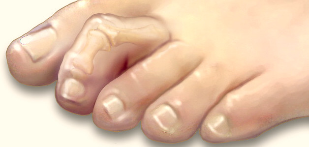 Image result for hammertoes